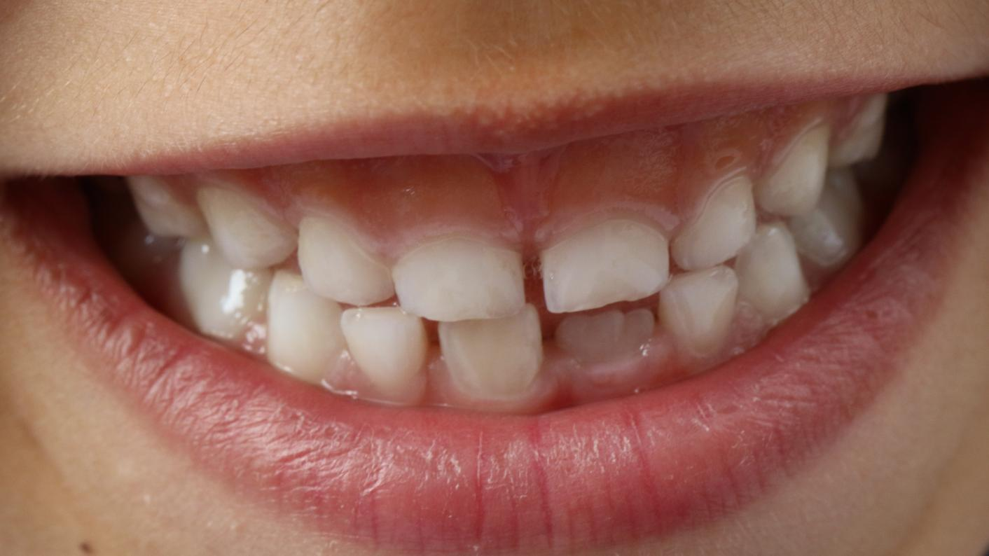 Primary school teeth